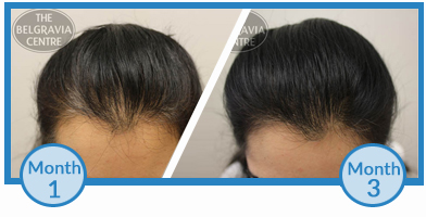 Click to View Ms F's Belgravia Hair Loss Treatment Success Story