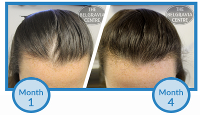 Click to View This Client's Female Hair Loss Regrowth