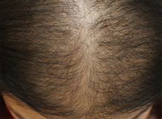 Reasons for Thinning Hair in Women