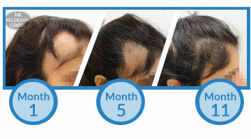 This Belgravia Alopecia Areata Client Has Seen Positive Regrowth from Treatment