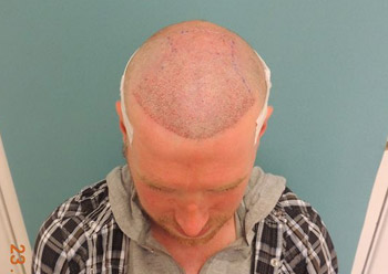Tom Heley had to shave his head for his FUE hair transplant