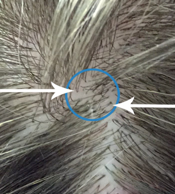 Two hairs growing from the same follicle