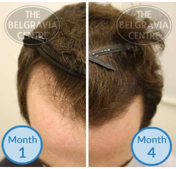 Example of a Receding Hairline from Male Pattern Hair Loss