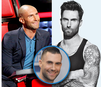 Adam Levine's Changing Hairline Has Lead to Hair Transplant Speculation