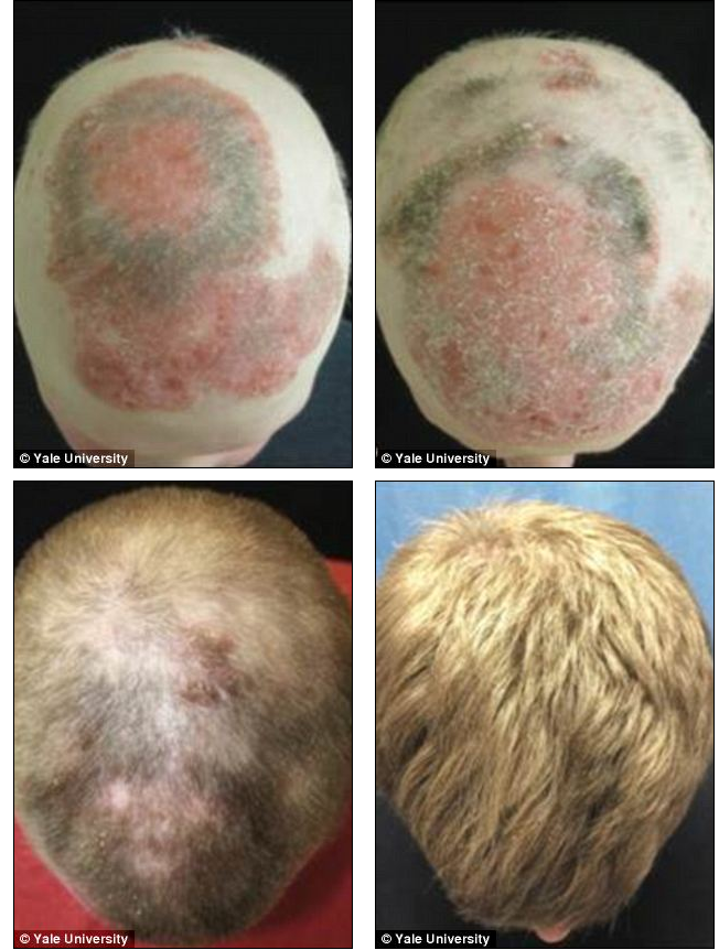 Arthritis Drug Tofacitinib Used to Treat Hair Loss from Alopecia Universalis