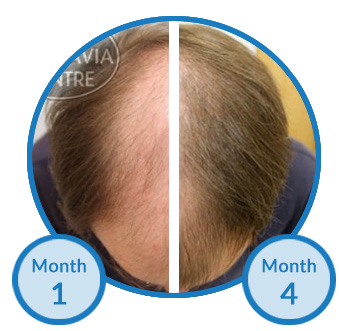Belgravia Client Tom is Seeing Impressive Regrowth to his Thinning Hair from Treatment
