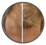 circ Male Pattern Hair Loss Treatment Results - Belgravia Centre London