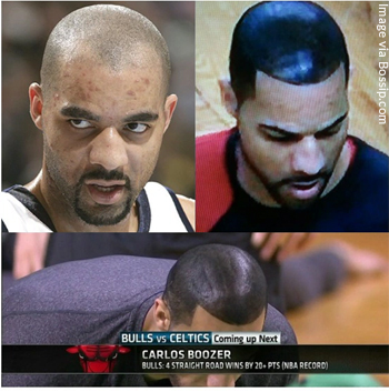 Carlos Boozer Before and After his Shoe Polish Hair Look to Hide Hair Loss
