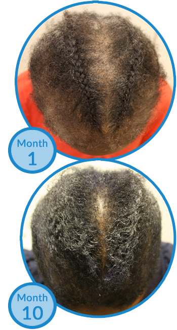 Belgravia Centre Hair Loss Treatment Success Story - Female Client with FDG and Traction Alopecia