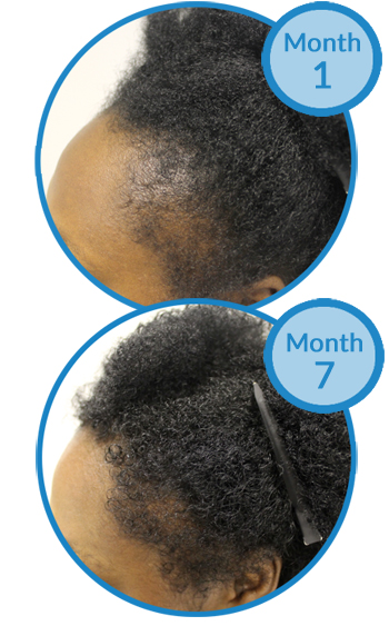 Belgravia Centre Success Story - Traction Alopecia Treatment - Ms T