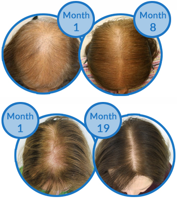 Belgravia Centre Female Pattern Hair Loss Treatment Success Stories
