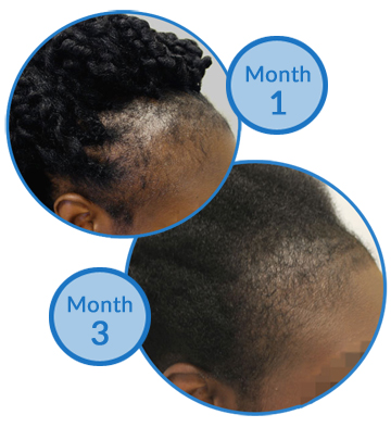 Traction Alopecia Treatment Belgravia Centre Success Story
