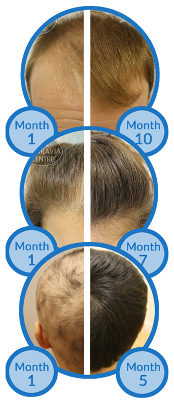 Belgravia Hair Loss Treatment Success Stories - Male Pattern Baldness - Female Pattern Hair Loss - Alopecia Areata