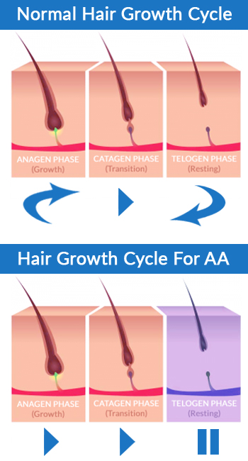 Normal Hair Growth Cycle versus Hair Growth in Alopecia Areata