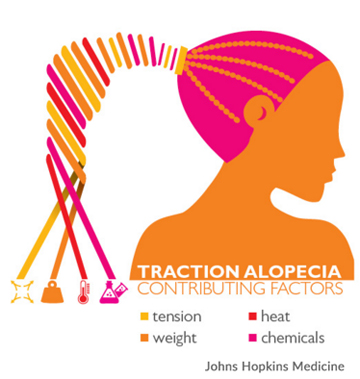 Traction Alopecia Contributing Factors Diagram