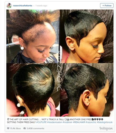 Haircut to Disguise Traction Alopecia Hair Loss