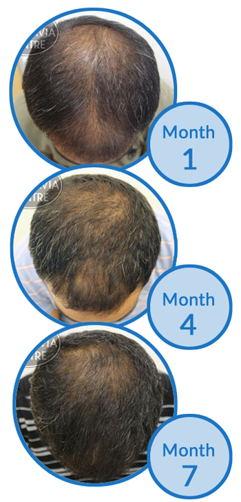 Male Hair Loss Treatment Success Story - Thinning Crown and Thinning Hair on Top