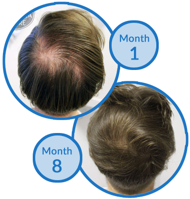 Thinning Crown Hair Loss Treatment - Belgravia Centre Client Success Story