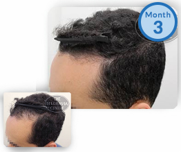 Receding Hairline Regrowth Male Pattern Hair Loss Treatment Success Story Male Pattern Baldness Belgravia Centre Clinic