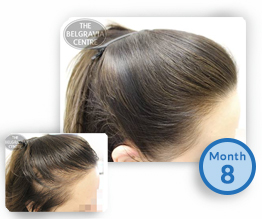 Women's Hair Loss Treatment Success Story Thinning Hair Regrowth Thicker The Belgravia Centre Clinic