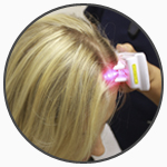 circ - Belgravia Centre Hair Loss Clinic Laser Therapy