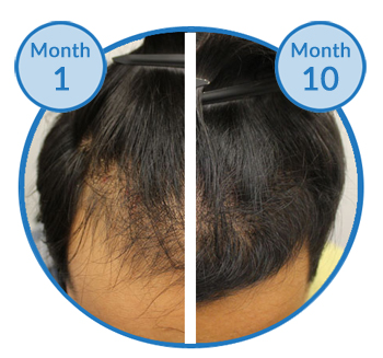 belgravia-male-hair-loss-treatment-success-story-client-before-and-after