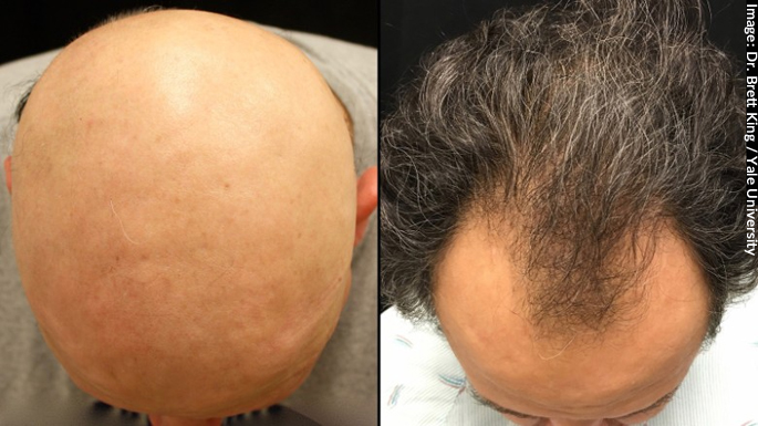 man-with-alopecia-totalis-regrows-hair-finds-he-has-receding-hairline