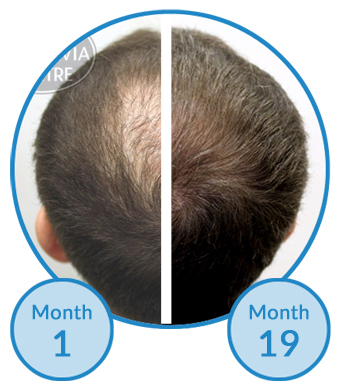 male-hair-loss-treatment-belgravia-centre-client-success-story-thinning-crown