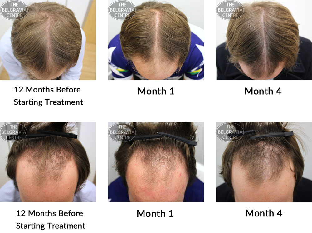 male pattern hair loss the belgravia centre 05 01 16