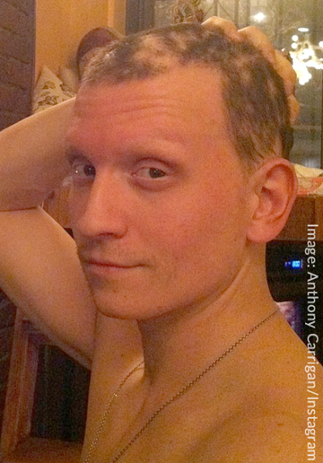 Anthony Carrigan With Hair Alopecia Areata Bald Spots