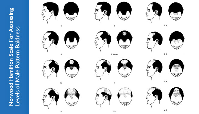Norwood Scale for Assessing Levels of Hair Loss Baldness in Men