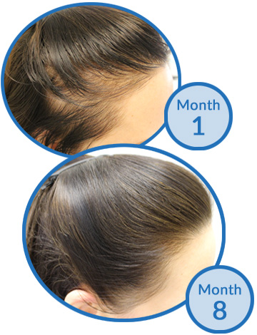 Belgravia Centre Success Story - Female Pattern Hair Loss before and after treatment client hair growth