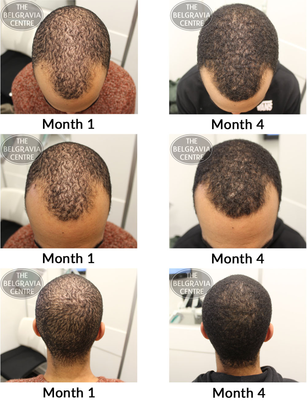 male pattern hair loss the belgravia centre 15 05 17