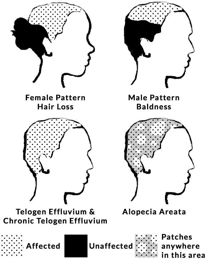 Stress-Related Hair Loss