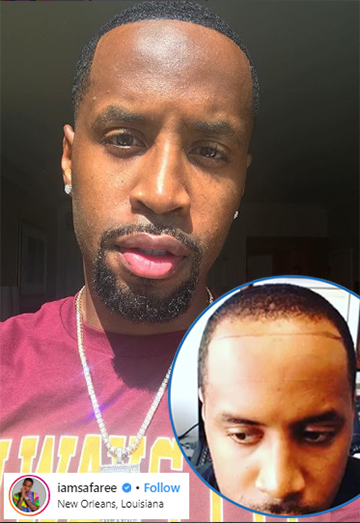 Safaree hairline before and after hair transplant receding hair loss