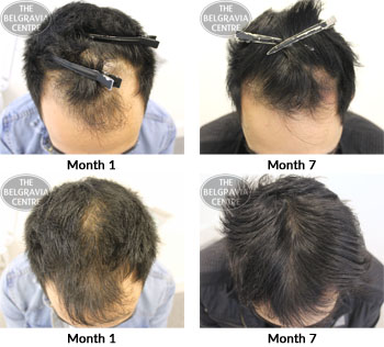alert male pattern hair loss the belgravia centre 03 09 2018