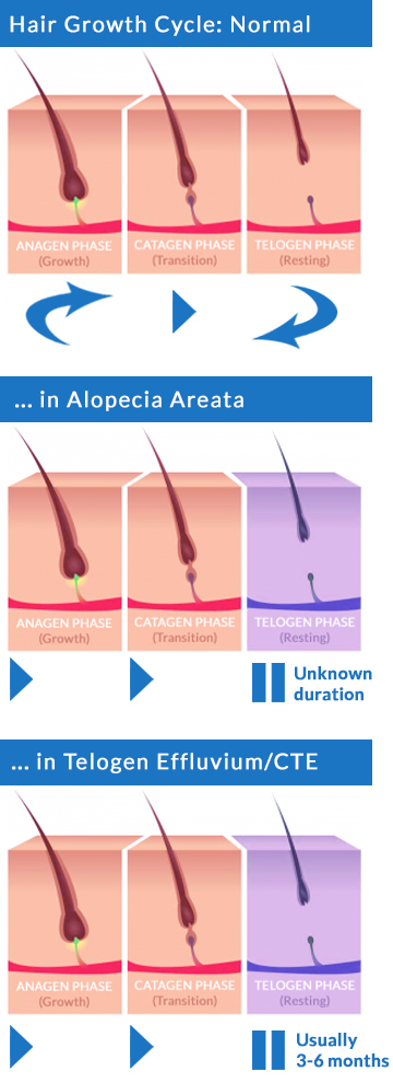 Normal Hair Growth Cycle and disrupted Alopecia Areata telogen effluvium diagram