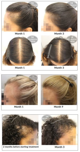 Female Hair Loss Treatments