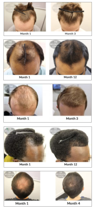 mens hair loss treatment success stories thinning hair regrowth receding hairline male pattern baldness