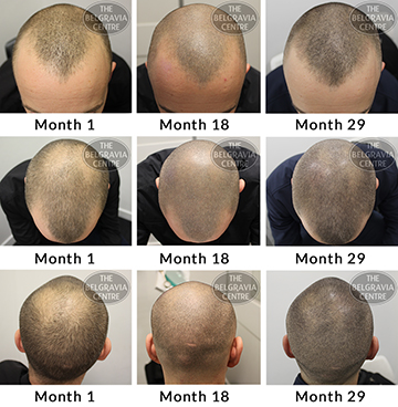 ALERT success story male pattern hair loss treatment belgravia centre men pl 30 11 2018