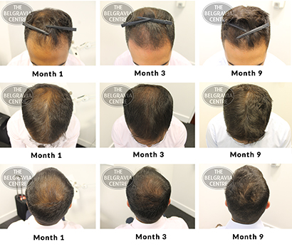 ALERT SUCCESS STORY male pattern hair loss treatment before and after the belgravia centre rds 30 01 2019