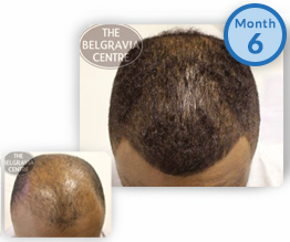 Afro Male Pattern Hair Loss Treatment Success Story Male Pattern Baldness Hairline Regrowth The Belgravia Centre Clinic