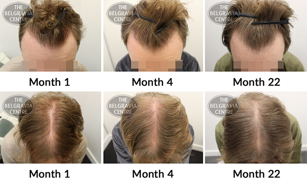 Example of Long Term Hair Loss Treatment Use for Male Pattern Baldness - The Belgravia Centre Hair Clinic
