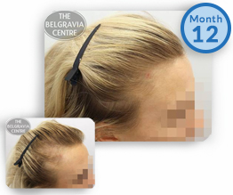 Female Pattern Hair Loss Treatment Success Story Thinning Temples Regrowth The Belgravia Centre Clinic