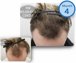 Male Pattern Hair Loss Treatment Success Story Male Pattern Baldness Receding Hairline Regrowth The Belgravia Centre Clinic