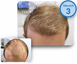 Male Pattern Hair Loss Treatment Success Story Male Pattern Baldness Thinning Hair Regrowth The Belgravia Centre Clinic