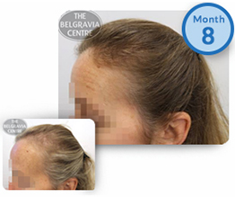 Women's Hair Loss Treatment Success Story Female Pattern Baldness The Belgravia Centre Clinic