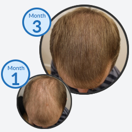 Homepage Success Story - Male Pattern Hair Loss Treatment Thinning Hair on Top - The Belgravia Centre Hair Clinic London - Male Pattern Baldness Hair Regrowth