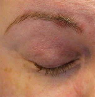 An example of seborrhoeic dermatitis in the eyebrow