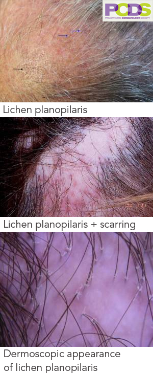 Examples of hair loss from Lichen Planopilaris - cicatricial alopecia